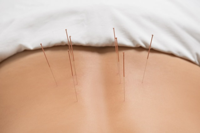 nardablog-acupuncture-for-back-pain-1147-85